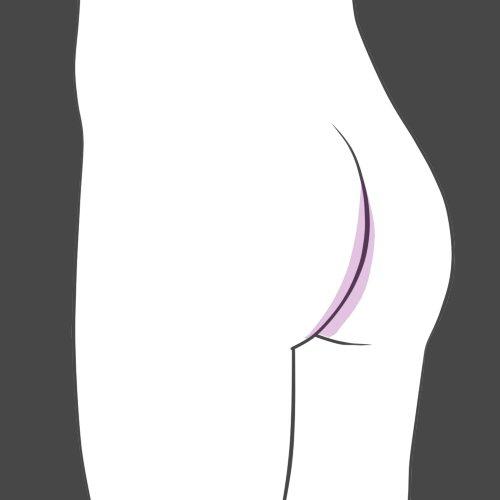 depilacao anus