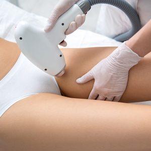 depilação íntima a laser